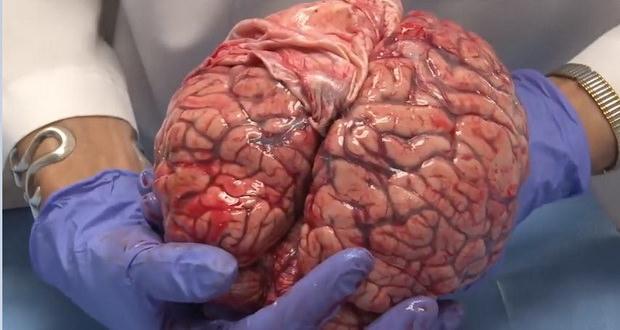 کالبد شکافی مغز انسان را در این ویدیوی شگفتانگیز تماشا کنید
