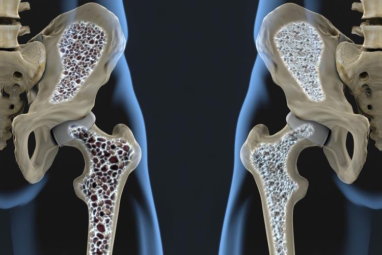 بیماری پوکی استخوان: علایم و شیوع تا درمان